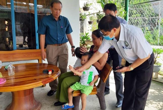 Lâm Đồng: Liên tiếp 4 trường học bùng phát bệnh tay chân miệng ảnh 1