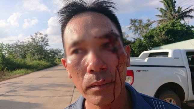 Vừa tố cáo cán bộ địa chính nhận hối lộ, một người dân bị đánh rách mặt ảnh 2