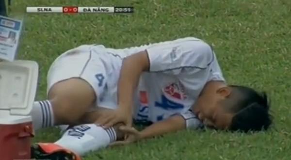 Những ca gãy chân kinh hoàng trong làng bóng đá Việt ảnh 2