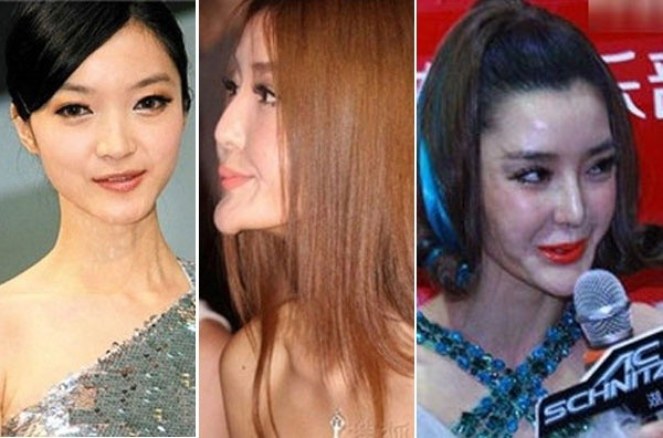 Những 'thảm họa dao kéo' của showbiz châu Á ảnh 5
