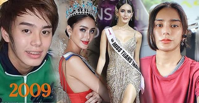 Hoa hậu chuyển giới Thái Lan gây sốc vì phẫu thuật trở lại thành nam giới ảnh 2
