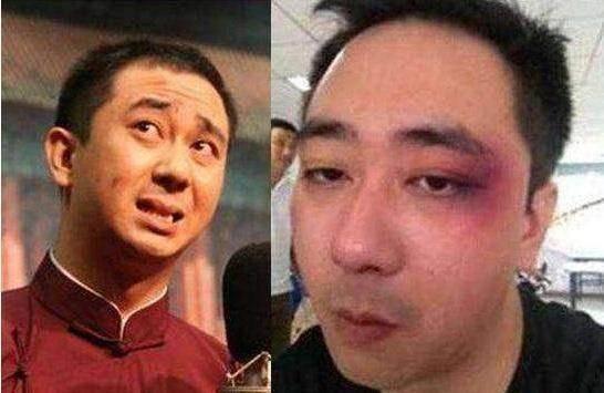 Diễn viên kiêm MC truyền hình Trung Quốc bị vợ tát 500 cái, nhập viện 8 lần ảnh 1