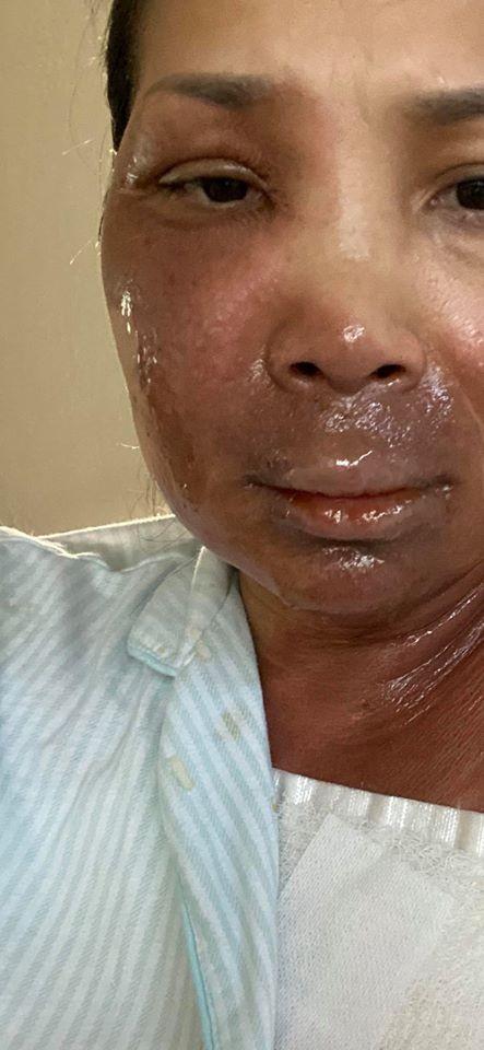Hồng Ngọc lần đầu công khai hình ảnh khuôn mặt bị bỏng đến 2/3 và chia sẻ điều xúc động ảnh 1