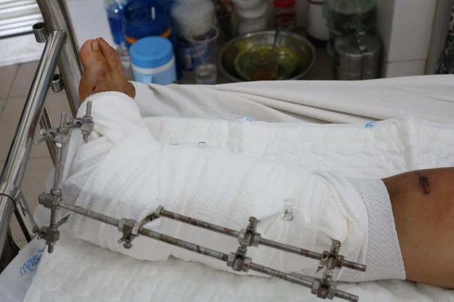 Cứu bé gái 15 tuổi khỏi tàn phế sau khi dập nát chân vì tai nạn ảnh 1