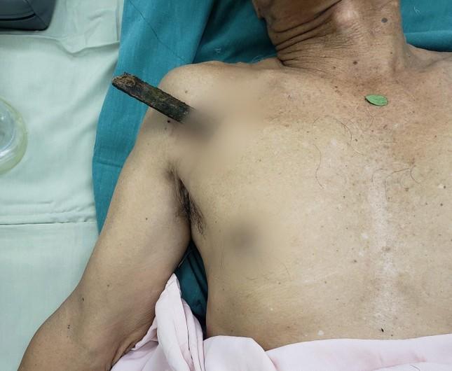 Ngã xe đạp, cụ ông 70 tuổi bị thanh gỗ dài 30cm đâm thủng phổi ảnh 1