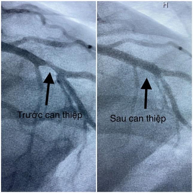 Cứu bác sĩ '10 phần chết' sau khi tim ngừng đập 1,5 giờ ảnh 1