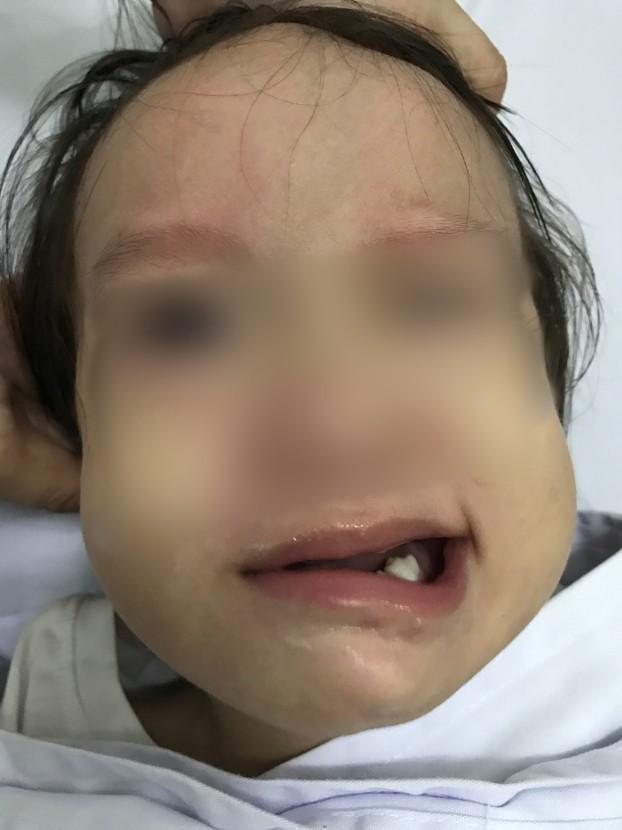 Bé gái 17 tháng tuổi đột ngột liệt mặt sau khi chảy mũi, ngạt mũi ảnh 1