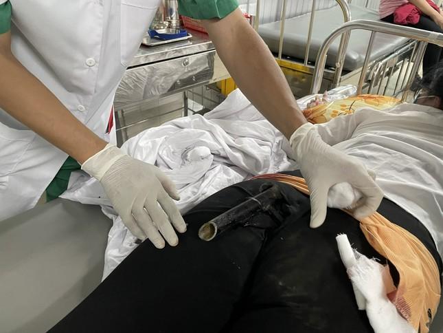 Va chạm giao thông, cô gái bị chân chống xe máy đâm dính vào vùng mông ảnh 1