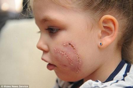 Bé gái 3 tuổi bị chó cắn nát 1 bên mặt ảnh 3