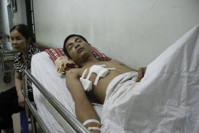 Bệnh nhân Minh trong ngày đầu điều trị tại bệnh viện Việt Đức