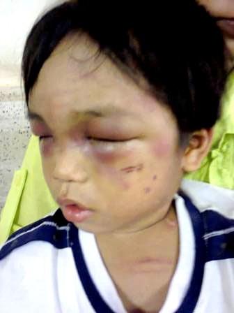 Những vết thương chằng chịt trên mặt và khắp thân thể cháu bé 3 tuổi