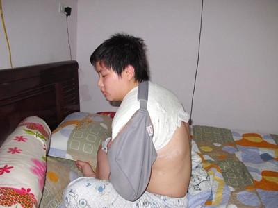 Nguyễn Hoài Linh phải bó bột sau khi va chạm với lực lượng làm nhiệm vụ