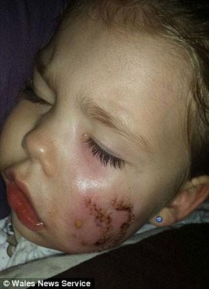 Cô bé Maddison với gương mặt bị thương nặng
