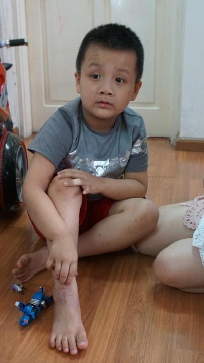 Cậu bé Việt Nam đầu tiên được tài trợ sang Pháp chữa trị viêm da cơ địa ảnh 1
