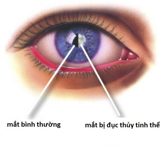 Những bệnh khiến thị lực giảm dần ảnh 3