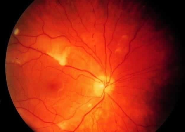 Những bệnh khiến thị lực giảm dần ảnh 6