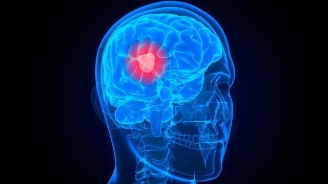 Những bệnh khiến thị lực giảm dần ảnh 7