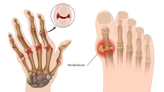 Chuyên gia khuyên dùng nước ion kiềm và thực phẩm có tính kiềm cho bệnh gout ảnh 2