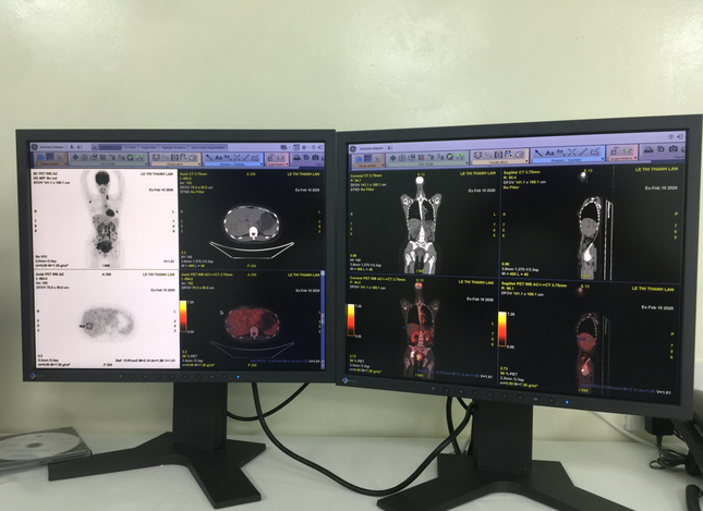 Bệnh viện Ung bướu triển khai hệ thống PET/CT trong điều trị ung thư ảnh 2
