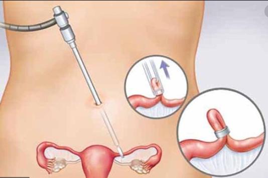 Nga Phụ Khang giúp cải thiện u xơ tử cung, u nang buồng trứng ảnh 2