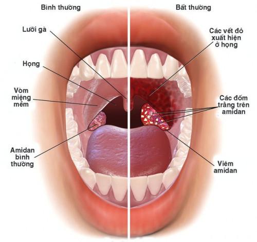 Vương Phế An - Giải pháp đột phá giảm viêm họng hạt, viêm amidan ảnh 1