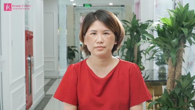 Bí quyết trị nám của U30 Hà Thành khiến chị em ngỡ ngàng ảnh 1