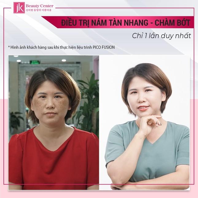 Bí quyết trị nám của U30 Hà Thành khiến chị em ngỡ ngàng ảnh 2