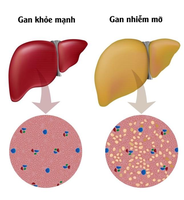 Máu nhiễm mỡ có nguy hiểm không? Cách dọn sạch mỡ máu của người Nhật ảnh 1