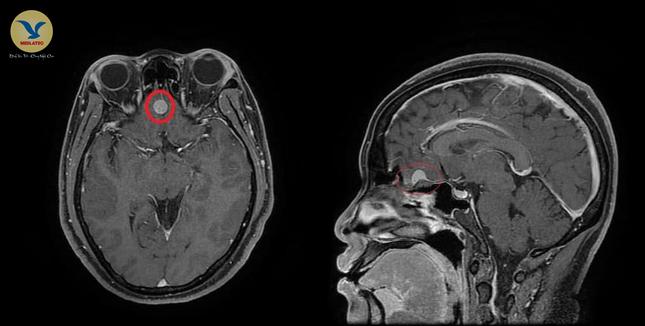 Cảnh giác phát hiện u màng não từ biểu hiện đau đầu thường xuyên ảnh 1