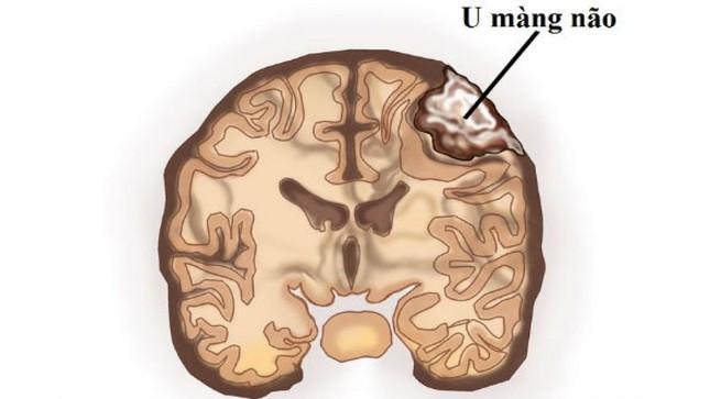 Cảnh giác phát hiện u màng não từ biểu hiện đau đầu thường xuyên ảnh 2