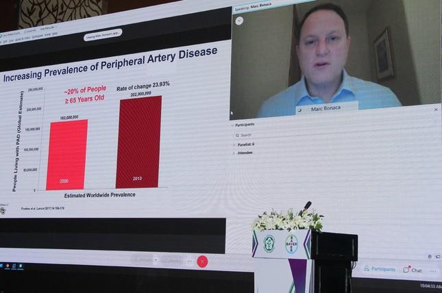 Bước ngoặt quan trọng trong điều trị bệnh động mạch ngoại biên ảnh 4