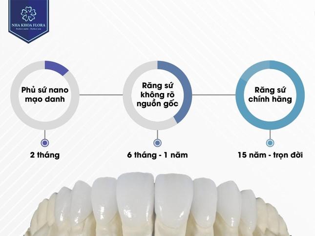 Cách nhận biết răng sứ chính hãng và răng sứ kém chất lượng ảnh 2