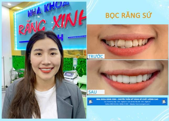 Nha khoa Răng Xinh thành phố Vinh - Sứ mệnh mang đến nụ cười toả sáng cho khách hàng ảnh 4