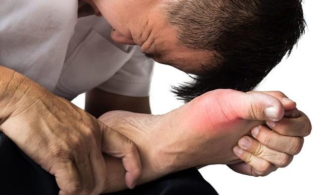 Tinh chất tiêu gout Sangu - Hướng đột phá mới trong hỗ trợ điều trị bệnh gout ảnh 1