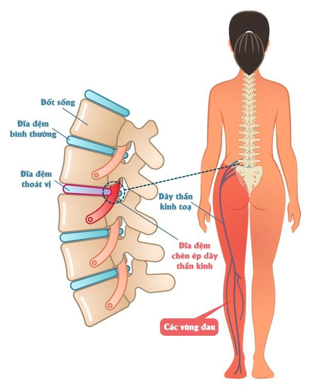 Đối phó với chứng đau lưng trong tiết trời giao mùa ảnh 2