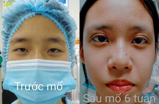 """Thiếu nữ tá hỏa phải phẫu thuật đến niềm vui vỡ òa được """"hồi sinh""""từ đôi mắt ảnh 2"""