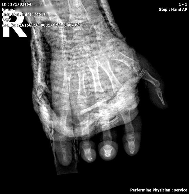 Bị tủ đè vào tay gãy xương, bé 4 tuổi phải nhập viện vì hoại tử da do đắp lá ảnh 1