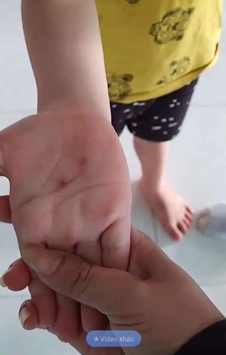 Buộc thôi việc giáo viên dùng vật nhọn đâm tay trẻ ảnh 2
