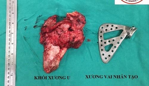 Lần đầu tiên ở Việt Nam: Thay 'vai nhân tạo' cho cô giáo mắc ung thư xương ảnh 1