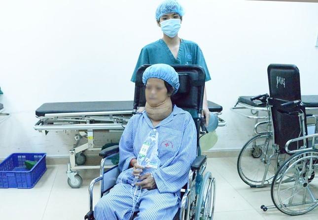 Người phụ nữ Sơn La mang bướu giáp khổng lồ suốt 10 năm ảnh 2