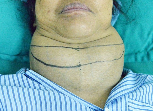 Người phụ nữ Sơn La mang bướu giáp khổng lồ suốt 10 năm ảnh 1