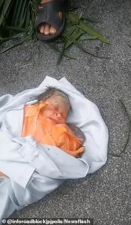 Xót xa em bé sơ sinh bị bỏ rơi với con dao rỉ găm trên lưng, nhưng em đã sống sót kỳ diệu ảnh 1