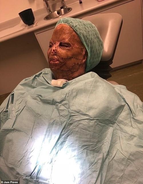Đang ủ tóc bằng dầu gội đầu mà tóc bị bắt lửa, nữ sinh bị bỏng hết mặt và mất 7 ngón tay ảnh 2