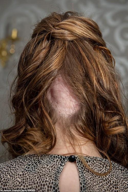 Chỉ vì nhuộm tóc mà cô gái này suýt mất mạng, may nhờ chú chó cưng phát hiện ra kịp thời ảnh 3