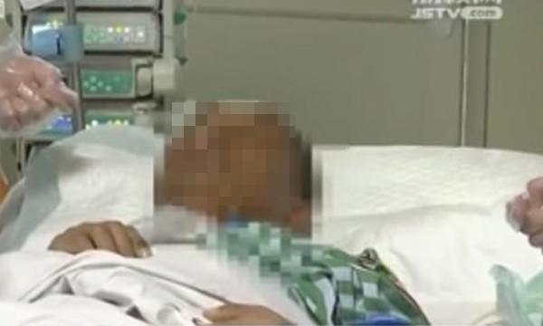 Nặn mụn từ lần này sang lần khác, một người bị biến chứng viêm phổi kép, xẹp cả 2 bên phổi ảnh 1