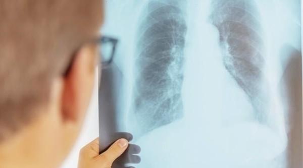 """Bệnh phổi - """"sát thủ"""" bất chấp lứa tuổi bệnh nhân: Bạn cần biết những gì và làm sao để giảm nguy cơ? ảnh 1"""