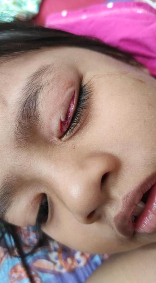 Người mẹ vô ý làm rơi mảnh mắc áo gãy, tai nạn bất ngờ đã xảy ra với cô con gái nhỏ ảnh 2