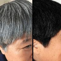 Hết tóc bạc sau chỉ 1 khóa điều trị, không cần đến các liệu pháp đắt đỏ ở salon!