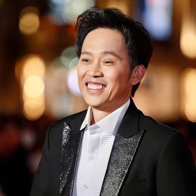 """NSƯT Hoài Linh lần đầu nói về phẫu thuật thẩm mỹ: """"Tôi cũng muốn làm da níu kéo tuổi xuân"""" ảnh 3"""