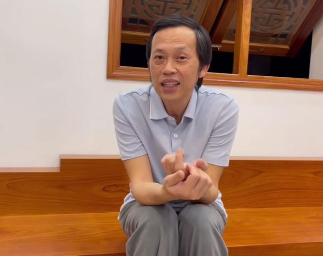 """NSƯT Hoài Linh lần đầu nói về phẫu thuật thẩm mỹ: """"Tôi cũng muốn làm da níu kéo tuổi xuân"""" ảnh 1"""